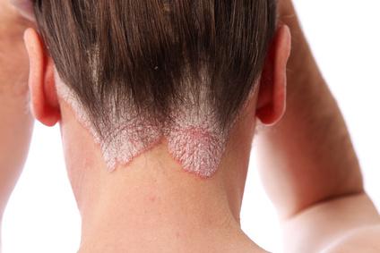 La historia clínica la psoriasis por la dermatología