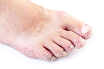 La eccema seca en las manos y en los pies